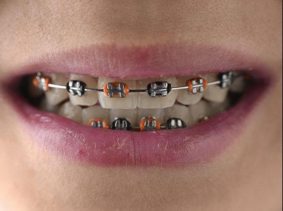 儿童牙齿矫正的最佳时间