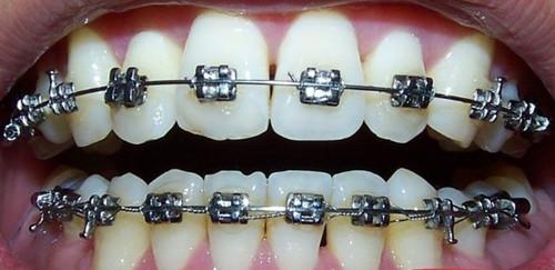 牙齿矫正器,矫正牙齿的秘密武器