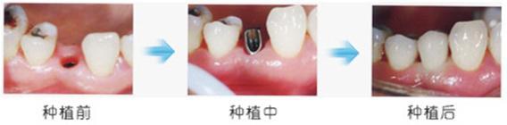 爱齿尔口腔种植牙
